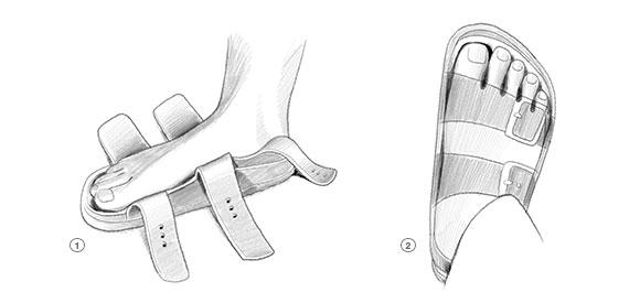 fitting-your-birkenstocks