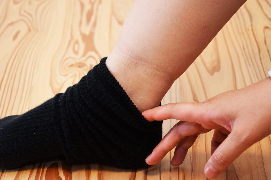 Swollen legs DVT
